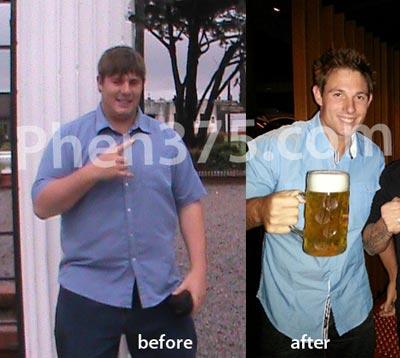 Brent antes y después de phen375 Dónde encontrar píldora de la pérdida de peso Phen375 The Ultimate en Curicó Chile